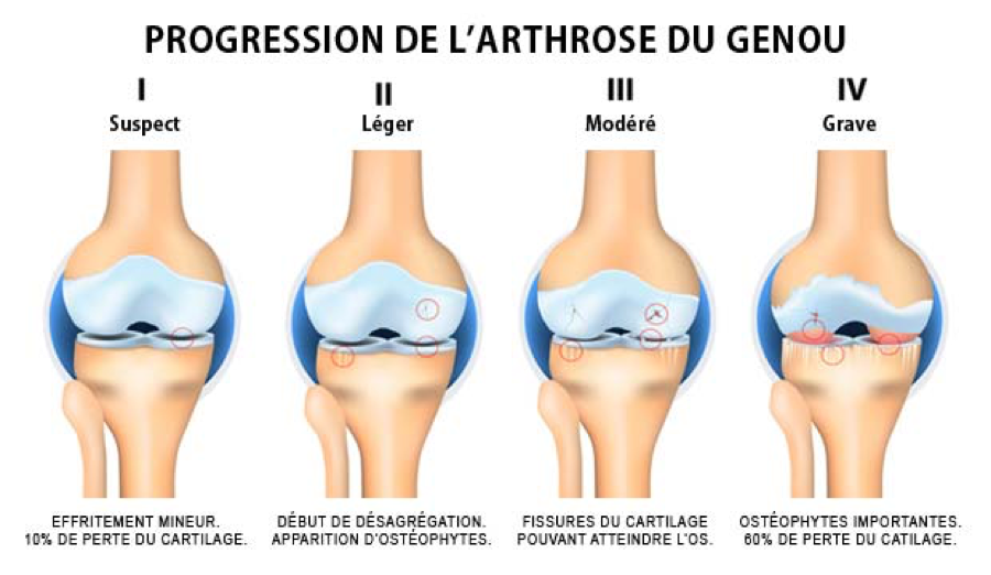 progression-de-l_arthrose-du-genou